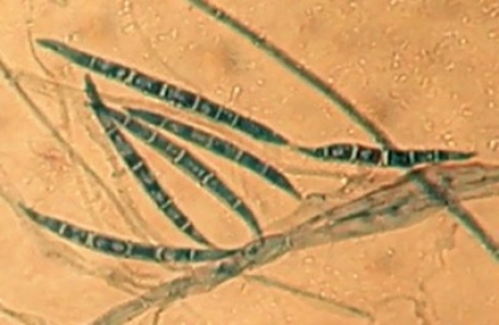 Microbiote et contaminants alimentaires