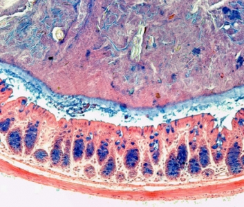 Muqueuse intestinale